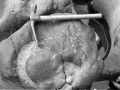 """Mutriku. Yacimiento de fósiles. Ammonites gigantes"""